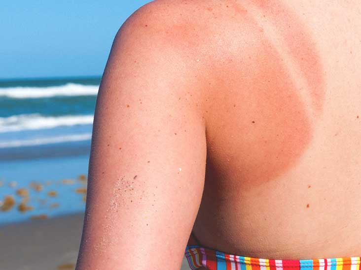 Remedies for Summer Time Maladies: Natural Care of Sunburn, Mosquito Bites, and Bee Stings